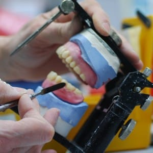 Volledige gebitsprothese