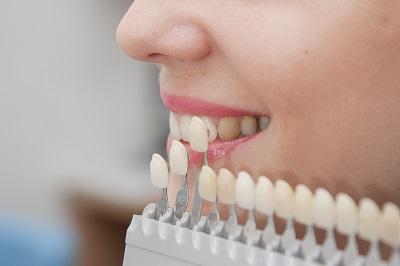 Behandelingen Dentalzorg