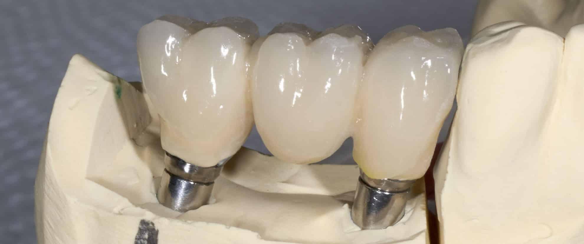 implantaten afbeelding