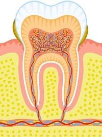 tandvleesontsteking 1