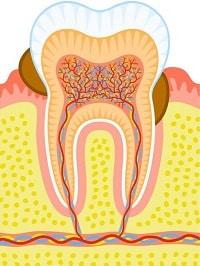tandvleesontsteking 2