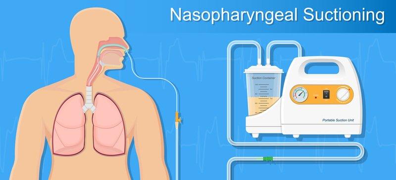 aspiratie-pneumonie