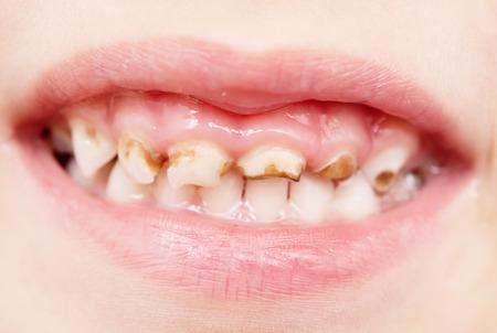 Slecht gebit
