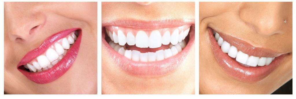tanden bleken stralend gezicht
