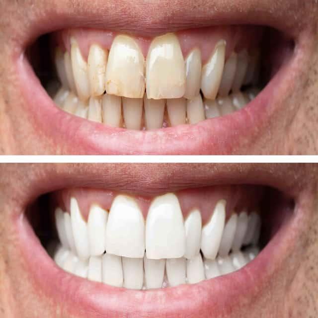 Tanden bleken voor en na 1 min dikke lijn 640px min1