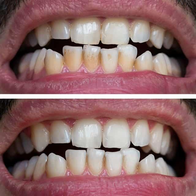 Tanden bleken voor en na 2 min dikke lijn 640px min1