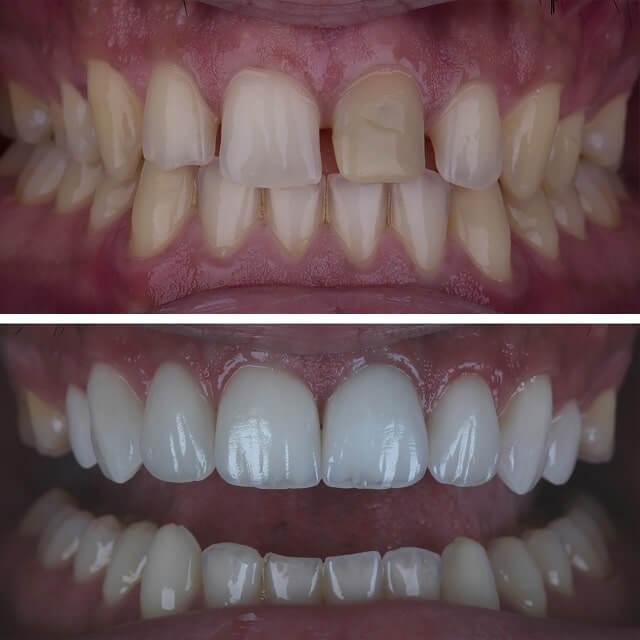 Tanden bleken voor en na 4 min dikke lijn 640px min