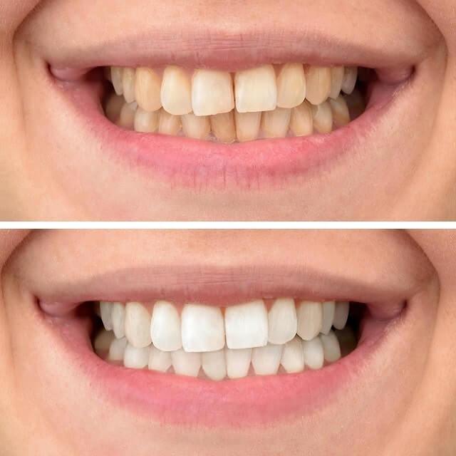 Tanden bleken voor en na 5 min dikke lijn
